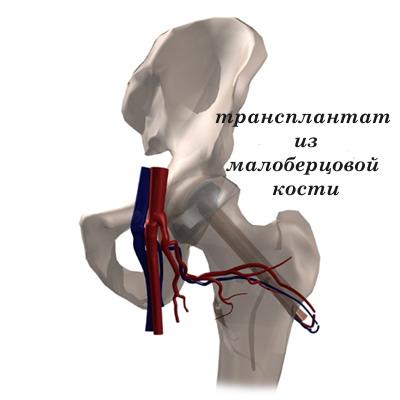 укорочение ноги коксартроз тазобедренного сустава