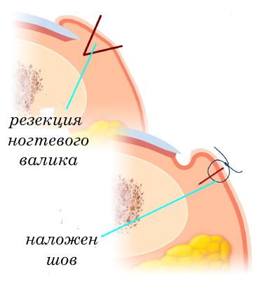 Если в результате хронического воспаления развивается гипертрофия тканей ногтевого валика, то для излечения...